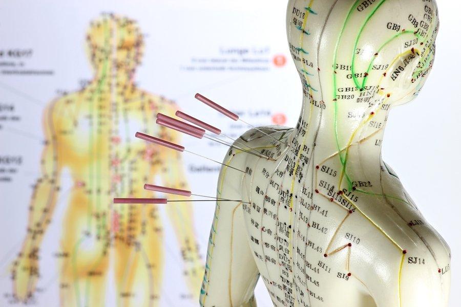 MMem 0330: Memorizing acupuncture points